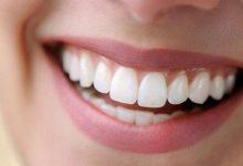 Dişteki Siyah Lekeler Nasıl Temizlenir
