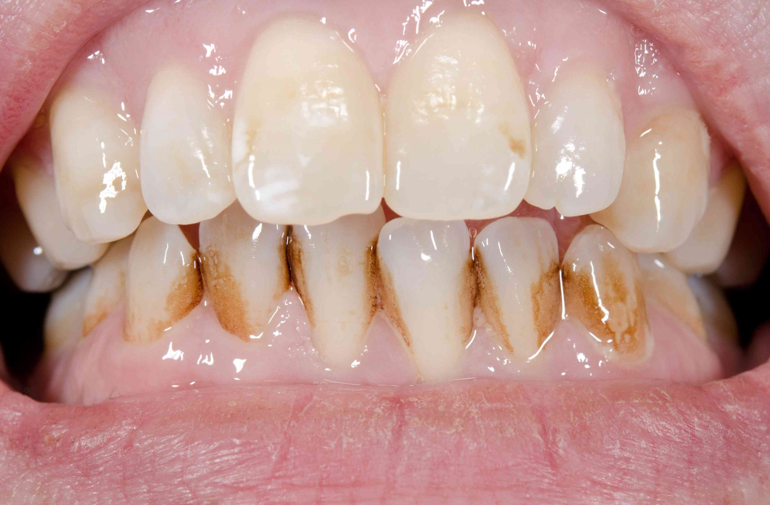 Diş Taşı Belirtileri Nelerdir